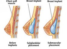 Breast Implantation Surgery in Orissa