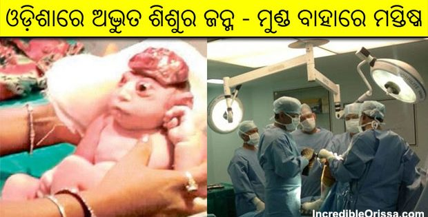 odisha baby brain outside skull