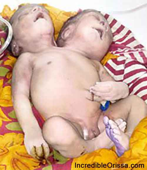 Baby girl born with two heads