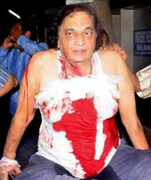 Senior Odia actor shot by bullets